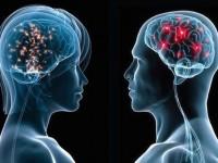 20 отличий между мозгом мужчин и женщин