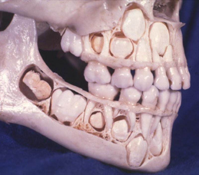 Коренные и молочные зубы вместе с