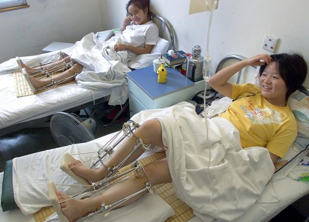 Patients sit in their beds recovering after having