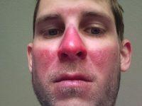 25 фото людей, которые не умеют пользоваться солнцезащитным кремом