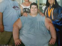 Мужчина, весивший 320 кг, сумел похудеть, НО появилась одна неожиданная проблема