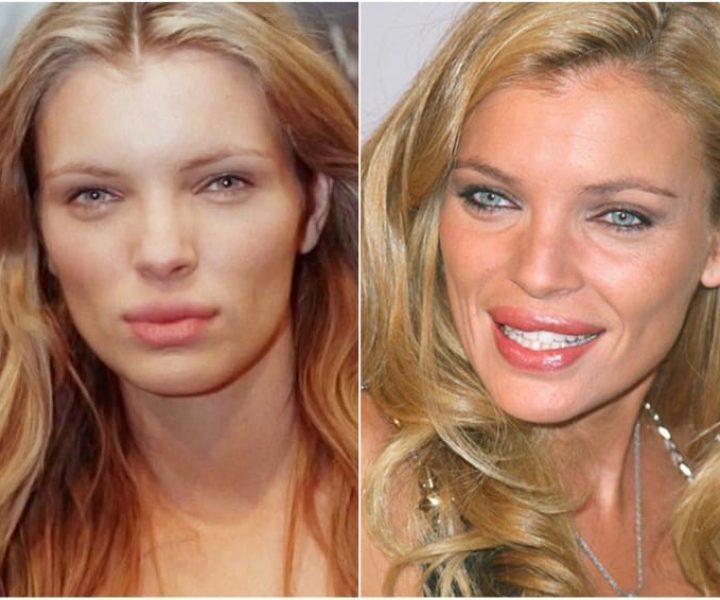 7 моделей, которые загубили свою внешность походом к хирургу