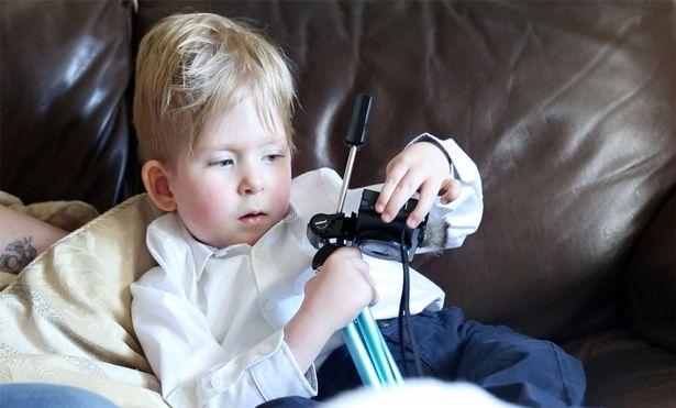 11 80 Мальчик, который родился почти без головного мозга спустя 5 лет
