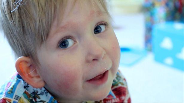2 111 Мальчик, который родился почти без головного мозга спустя 5 лет