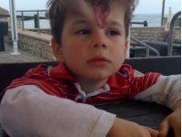 5-летнему малышу поставили под кожу шарики, чтобы избавиться от пугающего родимого пятна