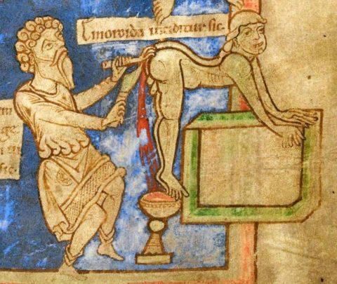 15 жутких вещей, которые практиковали врачи прошлых веков