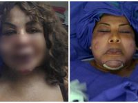 Пластический хирург-обманщик ввел ей под кожу цемент. Зрелище не для слабонервных