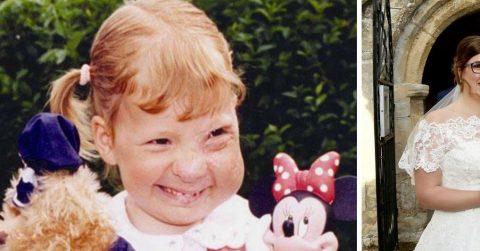 Настоящая история «гадкого утенка»: как девушка поборола болезнь и превратилась в красавицу