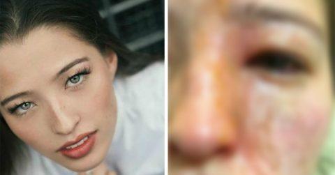 Девушка предупреждает об опасности масляных диффузоров: обязательно прочтите