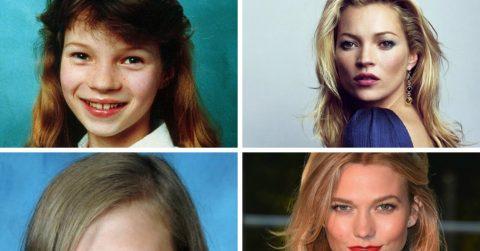 """Известные модели, которые в подростковом возрасте были """"гадкими утятами"""""""
