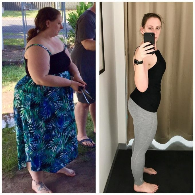 Женщина взяла себя в руки и разом сбросила 70 кг! Да и лишней коже нашлось применение!